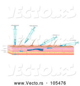 Vector of Diagram of Needles and Skin Showing Different Types of Injections by Graphics RF